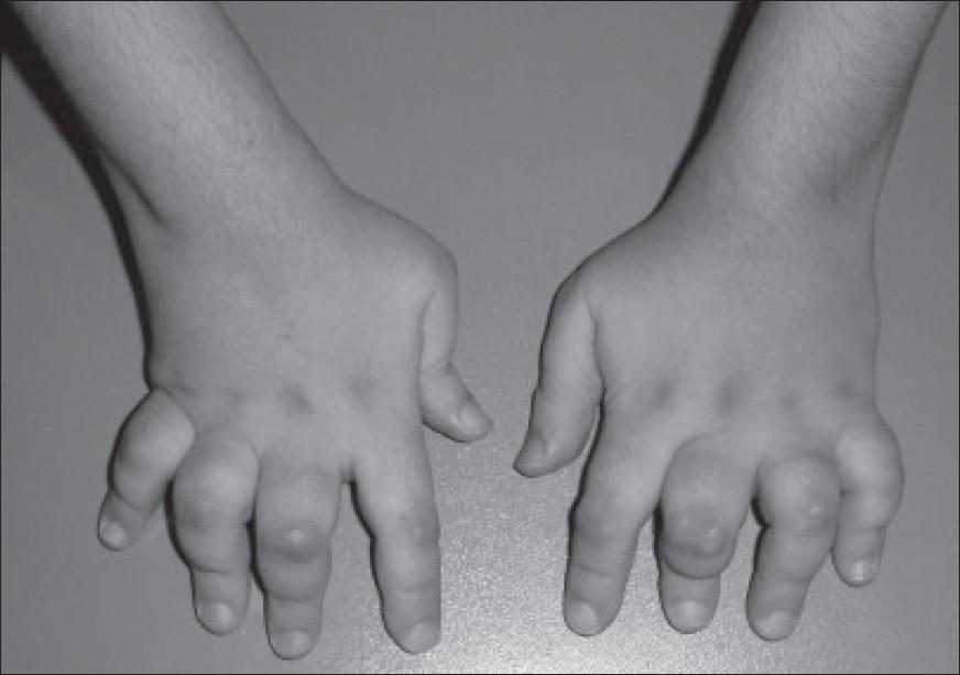 Cytoxan Lupus Forum