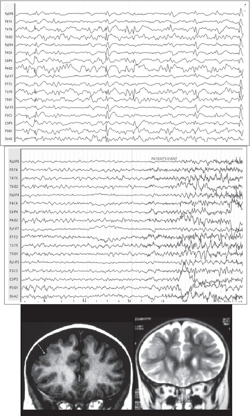 Figure 1a: 20 m old female with refractory epilepsy due to right frontal cortical dysplasia interictal EEG showing bilateral epileptic discharges