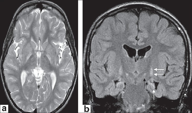Figure 1 :(a) Axial T2-weighted image reveals symmetric hyperintensity in globus pallidus. (b) Coronal fl uid attenuated inversion recovery (FLAIR) demonstrates symmetric high signal intensity in globus pallidus (double white arrows) and nucleus subthalamic bilaterally (black arrow). In addition, it shows bilateral atrophy and high signal intensity in the hippocampus (white arrow)