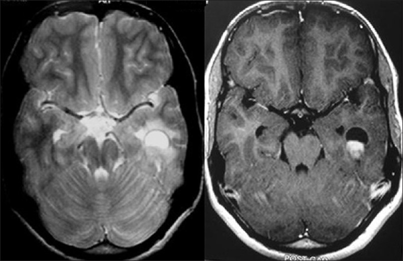 Neuroimaging in epilepsy bano s yadav sn chaudhary v for Cystic lesion with mural nodule