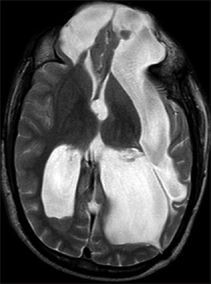 Figure 19: T2-weighted axial image of brain of 13-year-old male with recurrent seizure shows basi-frontal meningo-encephalocele with schizencephaly