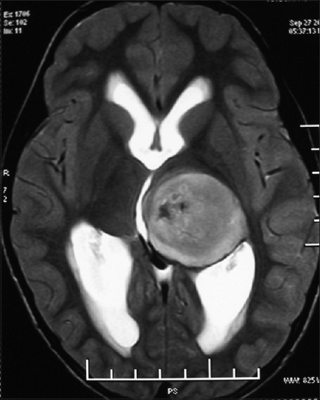 Figure 1: Axial T2W MRI image of the brain reveals a large, well-defined mass lesion in left thalamic region, having heterogeneous hyperintense signal intensity