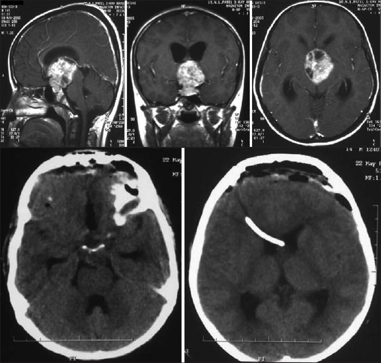 meningioma brain tumor survival rate
