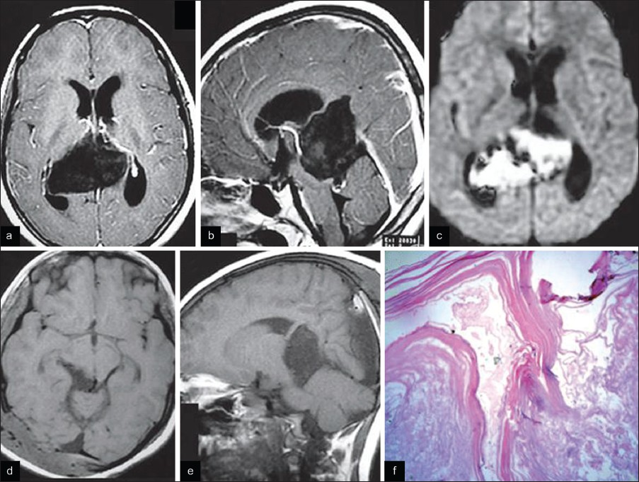 Figure 12: Patient 22. (a) T1 contrast axial and (b) T1 contrast sagittal MR images showing T1, T2 hypointense, nonenhancing lesion in posterior third ventricular region, ambient and quadrigeminal cisterns with mild hydrocephalus. (d) Diffusion weighted images showing restriction of diffusion. (e) Postoperative axial and (f) sagittal images showing total excision. (f) H and E (×400) section showing a cyst lined by thinned out stratified squamous epithelium filled with keratin material suggestive of an <i>epidermoid</i>