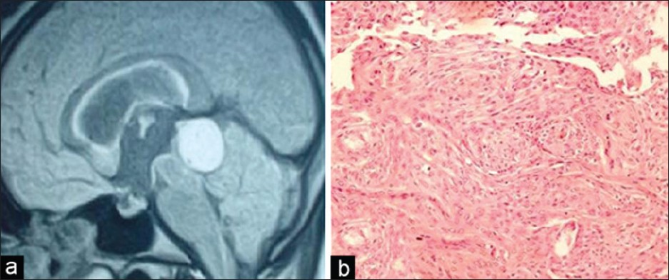 Figure 14: Patient 24. (a) T1 contrast MR sagittal MR image showing a uniformly enhancing tumor in quadrigeminal region and supracerebellar cistern. (b) H and E stained sections (×200) showing tumor arranged in whorls and nests displaying round to oval nuclei, dispersed chromatin, indistinct nucleoli and moderate amount of cytoplasm suggestive of a <i>meningothelial meningioma</i>