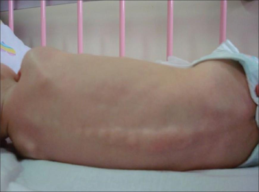 Farber Disease