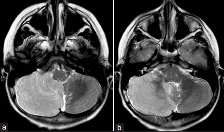 Figure 1: T2W axial images showing bright and enlarged right cerebellum with preserved cerebellar folia and prominent vermis