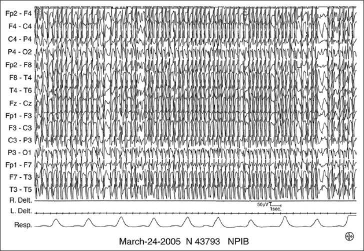 Figure 1: Electroencephalogram recording at the age of 5 years 10 months showing continuous generalized spike-waves during slow-wave sleep