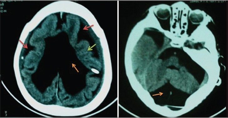 Figure 2: CT scan showing bilateral hygroma (red arrows), Hydrocephalus (orange arrow), and lissencephaly (green arrow)