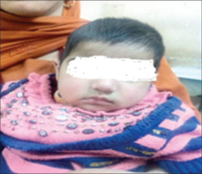 Figure 1: 6-month-old baby with no facial dysmorphism