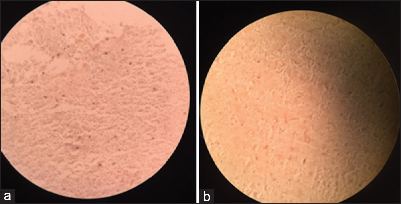 Figure 2: (a) Immunohistochemistry showing positivity for chromogranin. (b) Immunohistochemistry showing positivity for synaptophysin