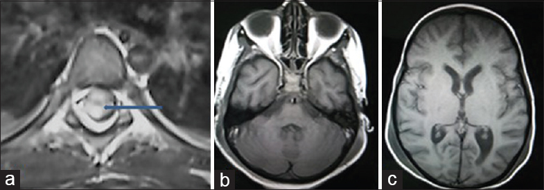 Figure 2: Axial contrast-enhanced magnetic resonance imaging spine (a) showing heterogeneous enhancing lesion (arrow) severely compressing cord. Axial magnetic resonance imaging of brain (b and c) showing no lesion