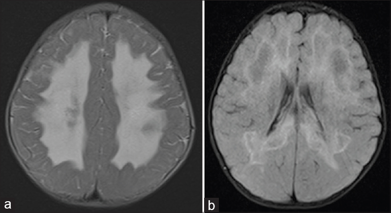 Figure 1: (a and b) Bilateral symmetrical butterfly-shaped T2 hyperintensities of the periventricular and deep white matter with relative sparing of the subcortical U-fibers
