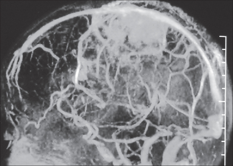 Figure 3: Magnetic resonance venogram of the brain showing partial obliteration of superior sagittal sinus due to pressure eff ect caused by mass