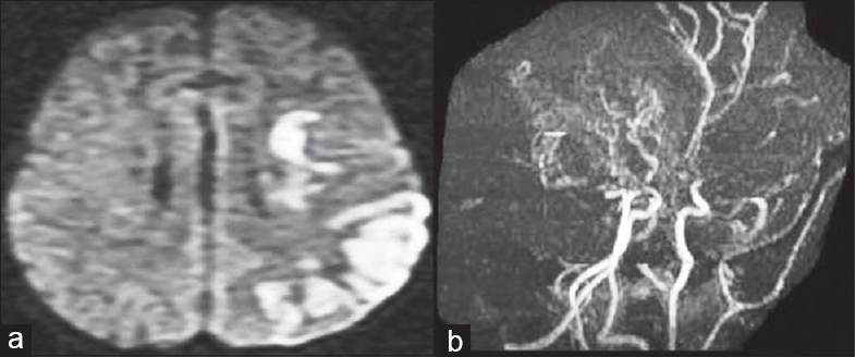 "Figure 1: Magnetic resonance imaging of the brain diff usion-weighted image (a) showed diff usion restriction in the left parietooccipital region, which was suggestive of acute infarct. Magnetic resonance angiogram of the intracranial vessels (b) revealed narrowing of bilateral supraclinoid internal carotid arteries, nonvisualization of bilateral middle cerebral arteries and distal part of posterior cerebral arteries along with extensive collateralization of vessels, creating a ""puff of smoke"" appearance"