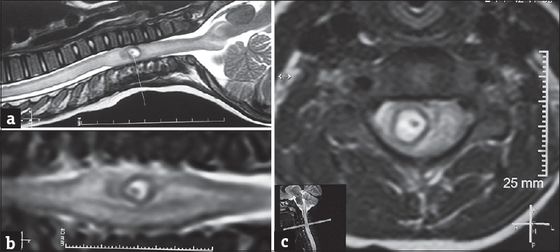 "Figure 1: (a) T2-weighted magnetic resonance imaging image of cervical spine showing a hyperintense cystic lesion with intracystic hypointense ystic lesion with intracystic hypointense ""target like"" scolex. (b) T2-weighted magnetic resonance imaging image in coronal section. (c) T2-weighted magnetic resonance imaging image in axial section"