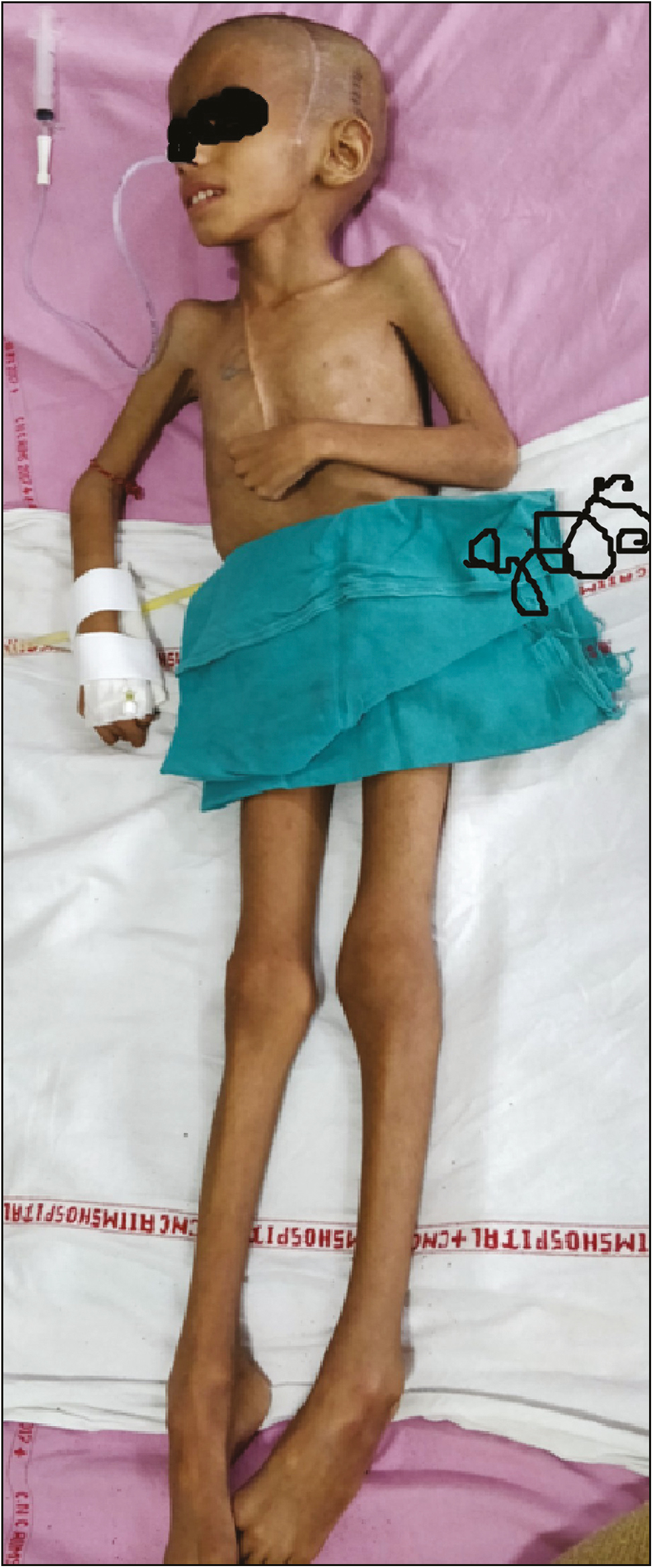 Figure 1: Clinical photograph showing grossly emaciated body but preserved height