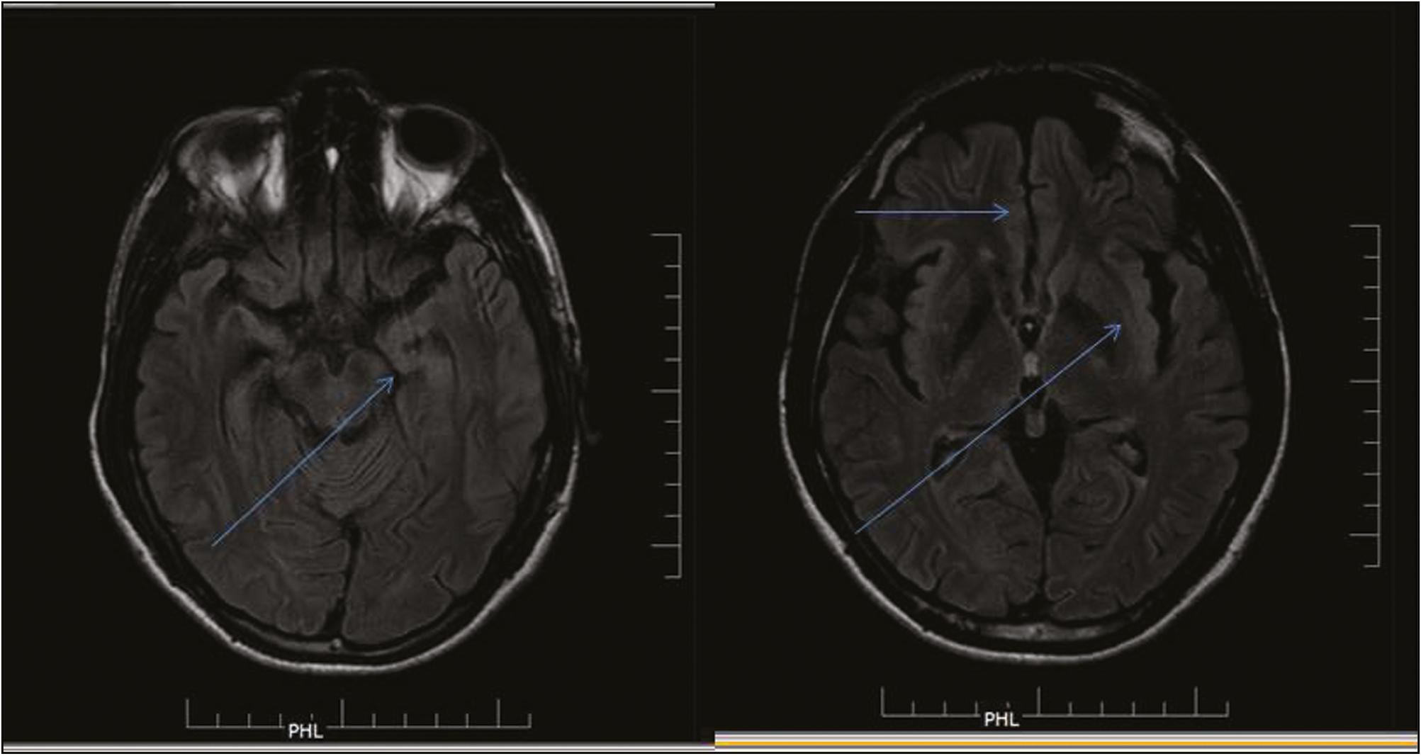 N Methyl Sc D Sc Aspartate Encephalitis Our Experience With