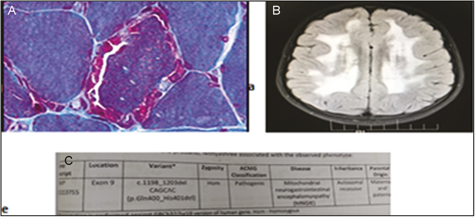Figure 12: Mitochondrial neurogastrointestinal encephalopathy (MNGIE) (A) histopathology of muscle with modified Gömöri trichrome stain showing ragged red fibers. (B) MRI showing symmetrical white matter changes. (C) Genetic report confirming the diagnosis