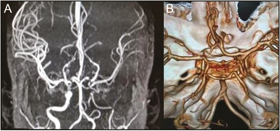Figure 1: (A) MRA (maximum intensity projection) and (B) CTA (volume rendering technique) images, respectively, showing hypoplastic left ICA with reconstitution of flow in left MCA and anterior cerebral artery (ACA) from left PCoM. Left MCA, ACA, and their branches are small in caliber with paucity of M4 branches of MCA