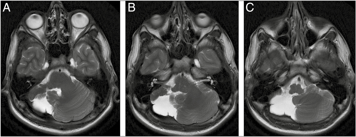 Figure 1: Axial T2WI of right cerebellar hypoplasia in craniocaudal sequence. A: There is marked hypoplasia of the right cerebellar hemisphere and replacement by CSF. The left cerebellar hemisphere is normal in bulk and signal intensity. B: At the level of internal auditory canals, the residual right cerebellum can be seen anteriorly. The normal bulk of vermis can also be seen. C: At the level of medulla, only a thin strip of residual right cerebellum is seen anteriorly. In all the images, the residual right cerebellum shows normal grey white differentiation and foliation. The left cerebellar hemisphere shows normal volume and morphology.