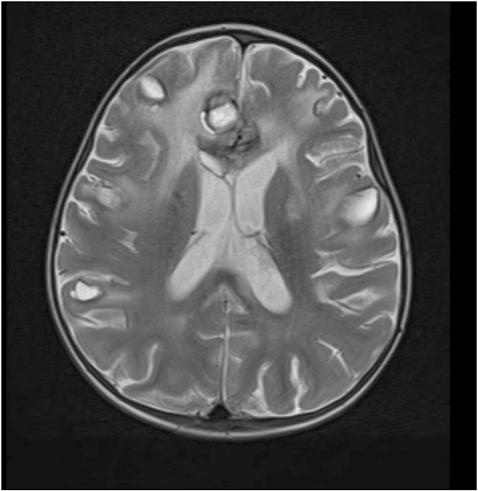 Figure 1: Brain magnetic resonance imaging T2-weighted axial section showing the appearance of multiple intracranial bleeding sites in subcortical areas