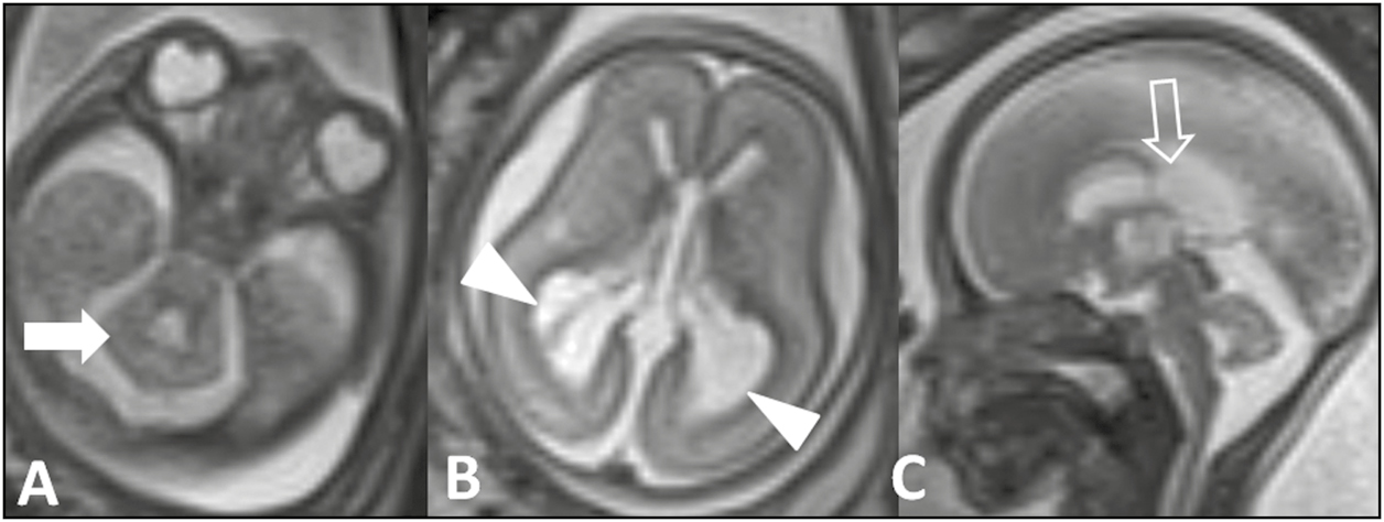 Figure 3: Axial (A, B) MR image of a 21-week fetus shows absent splenium of CC, rhombencephalensynapsis (arrows) besides ventriculomegaly (arrowhead). Sagittal image (C) shows absent splenium of CC (open arrow)—hypoplasia without dysplasia