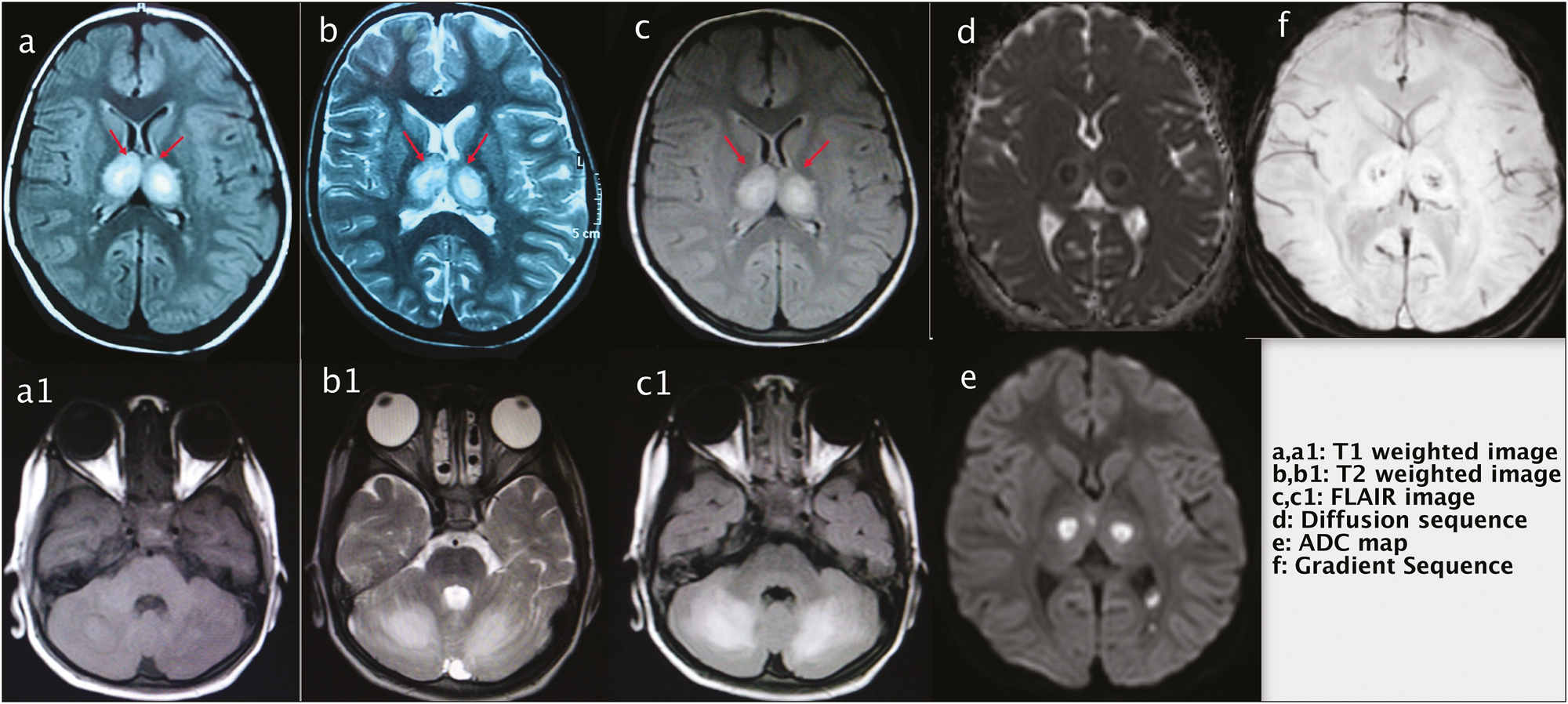 Figure 2: Axial sections of MRI of brain of a patient with acute necrotizing hemorrhagic encephalitis. T1-weighted image (a and a1), T2-weighted image (b and b1), and fluid attenuated inversion recovery (FLAIR) image (c and c1) show symmetrical hyperintensities in bilateral thalami and cerebellar hemispheres. Axial sections of MRI brain diffusion sequence (d), apparent diffusion coefficient (ADC) map (e), and gradient sequence (f) at the level of bilateral thalami showing restricted diffusion (d) and corresponding low ADC value (e) in bilateral thalami suggestive of cytotoxic edema. Few foci of blooming are seen in bilateral thalami on gradient sequence (f) suggestive of haemorrhage. Red arrows showing symmetrical hyperintensities in bilateral thalami
